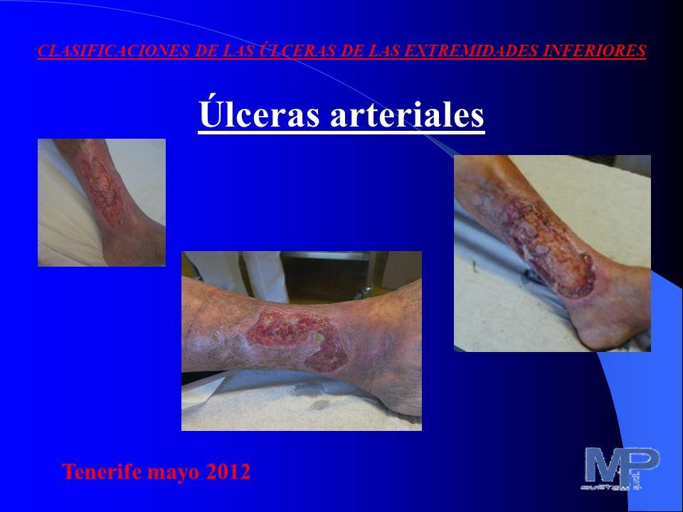 VentajasDesventajas Aumento del O 2 disuelto Acción bactericida Acción antiedema Acción cicatrizante -No soportada por muchos pac.