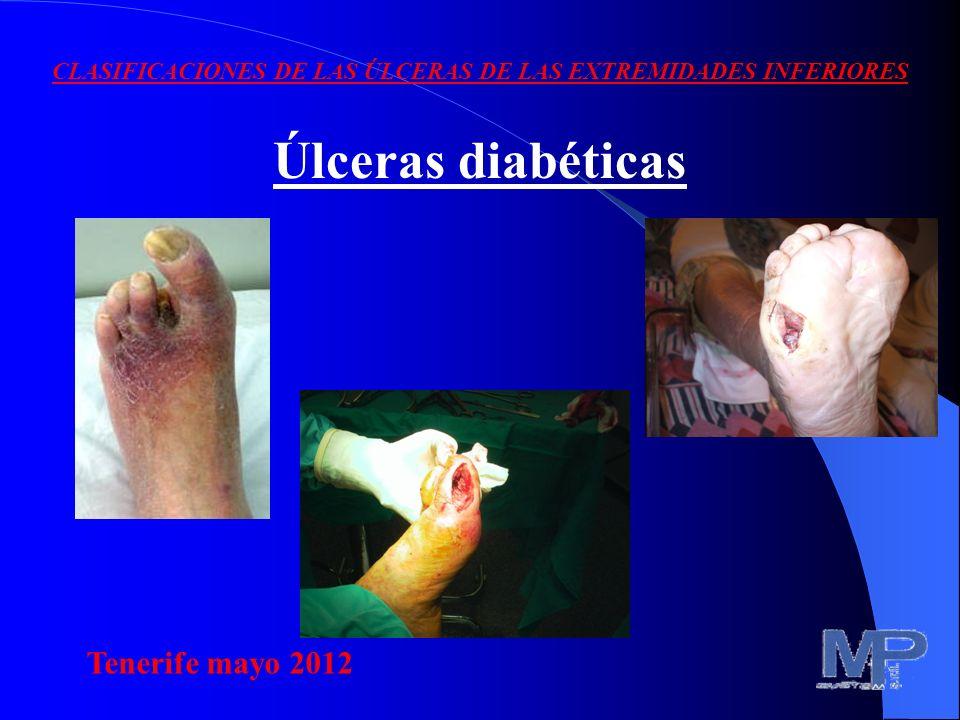 CLASIFICACIONES DE LAS ÚLCERAS DE LAS EXTREMIDADES INFERIORES Úlceras diabéticas Tenerife mayo 2012