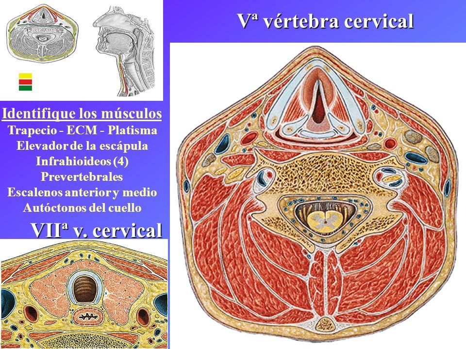 Vª vértebra cervical VIIª v. cervical Identifique los músculos Trapecio - ECM - Platisma Elevador de la escápula Infrahioideos (4) Prevertebrales Esca