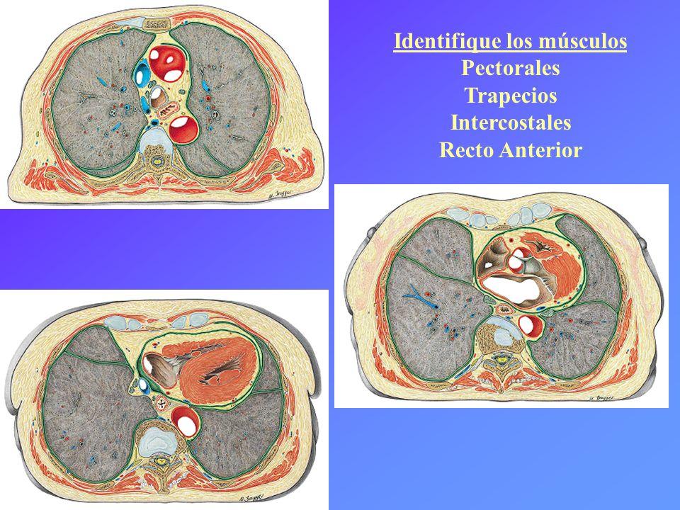 Identifique los músculos Pectorales Trapecios Intercostales Recto Anterior