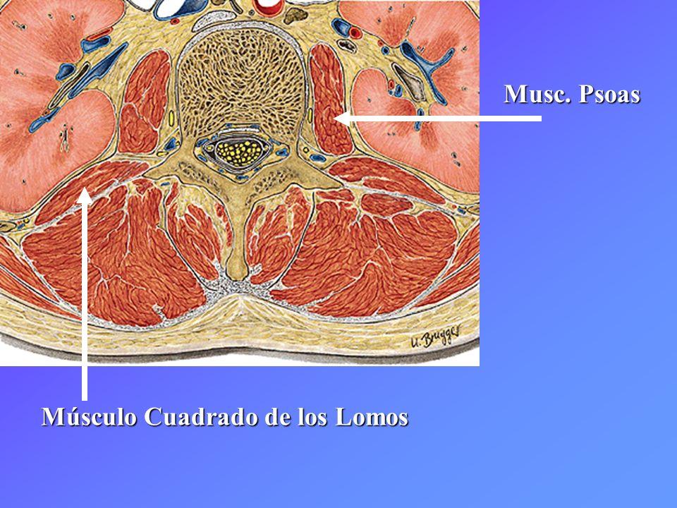 Musc. Psoas Músculo Cuadrado de los Lomos