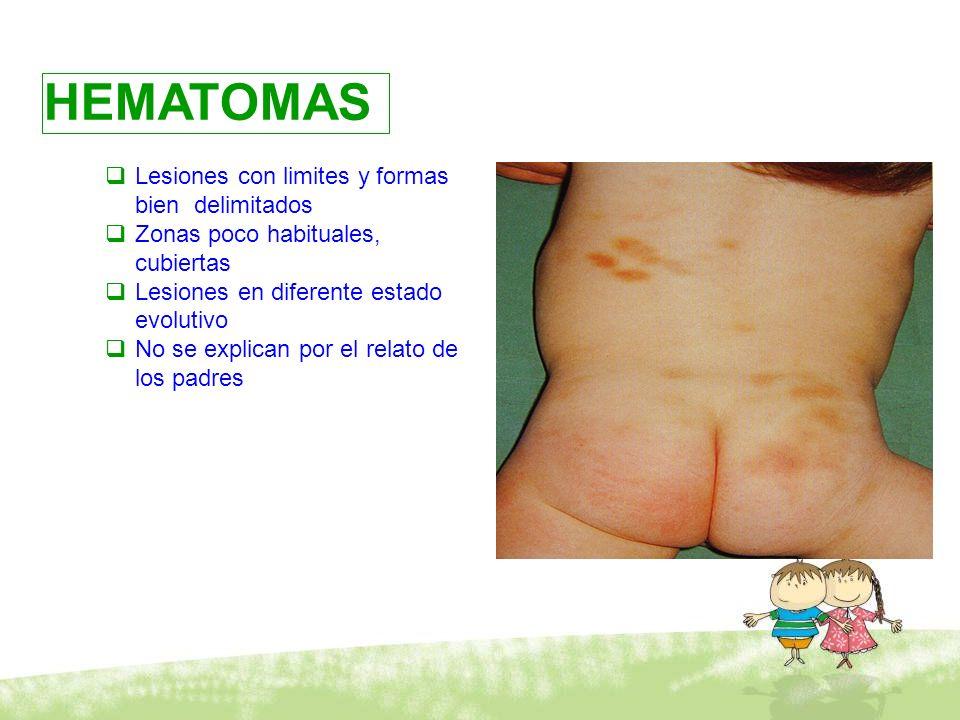 Maltrato físico HEMATOMAS Lesiones con limites y formas bien delimitados Zonas poco habituales, cubiertas Lesiones en diferente estado evolutivo No se