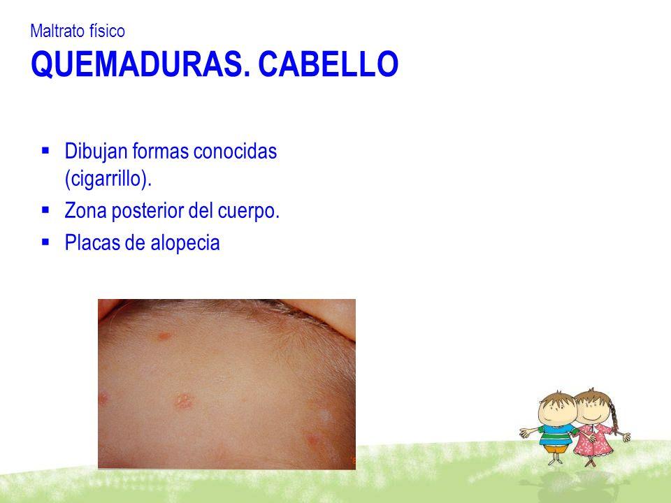 Maltrato físico QUEMADURAS. CABELLO Dibujan formas conocidas (cigarrillo). Zona posterior del cuerpo. Placas de alopecia