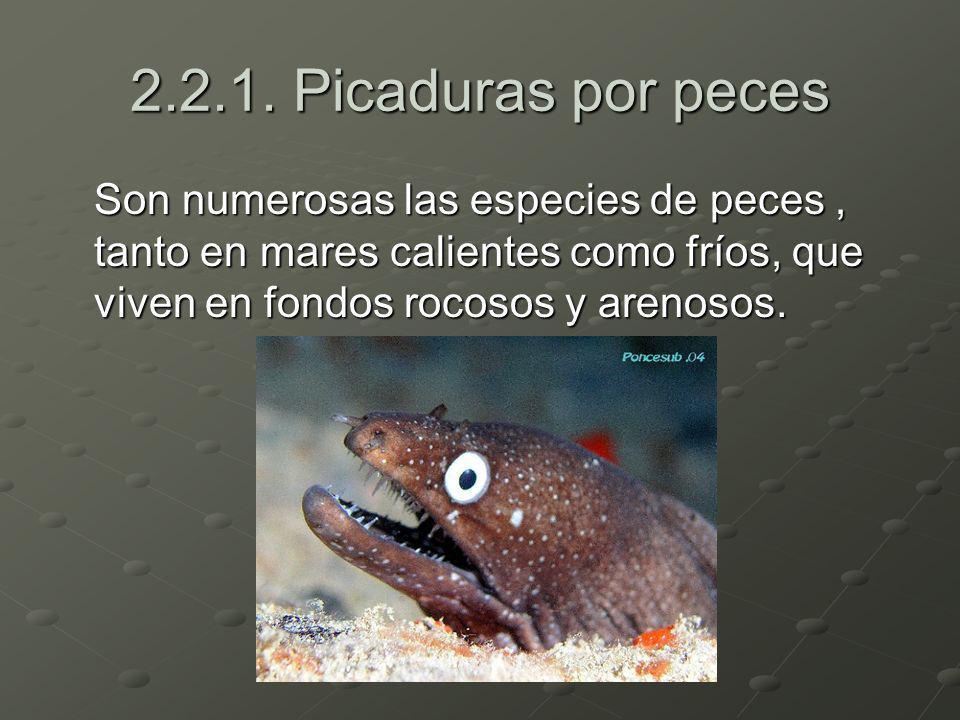 2.2.1. Picaduras por peces Son numerosas las especies de peces, tanto en mares calientes como fríos, que viven en fondos rocosos y arenosos.