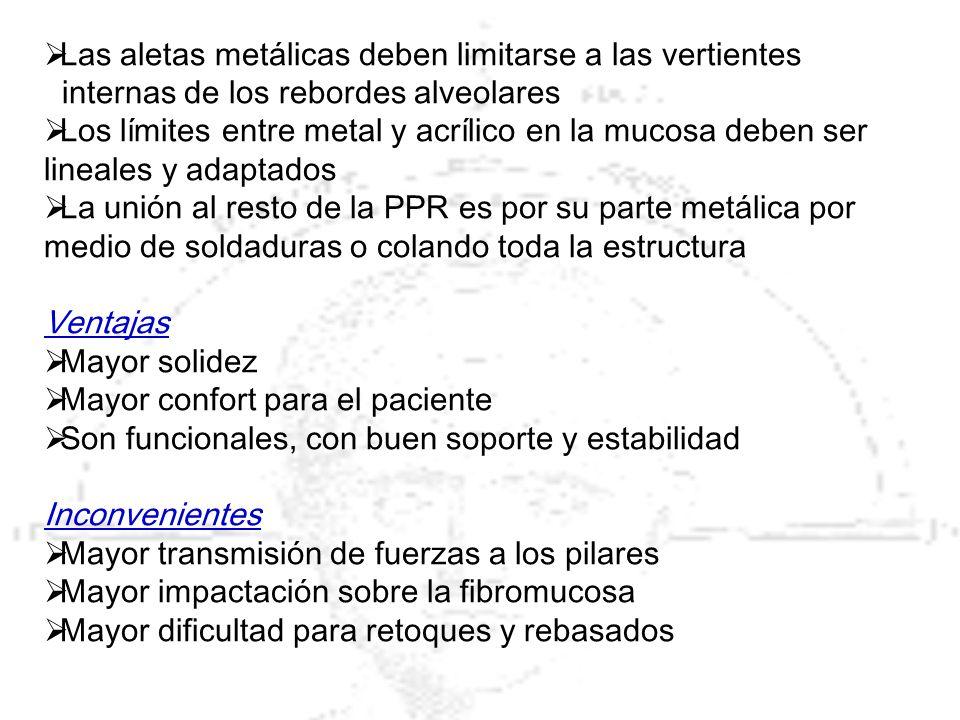 Las aletas metálicas deben limitarse a las vertientes internas de los rebordes alveolares Los límites entre metal y acrílico en la mucosa deben ser li