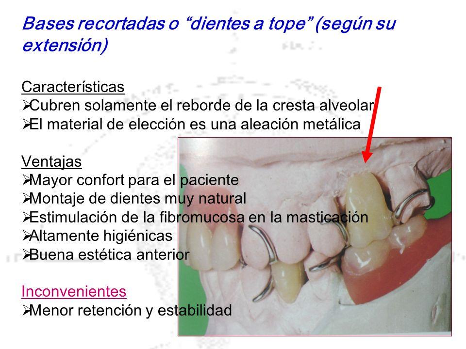 Bases recortadas o dientes a tope (según su extensión) Características Cubren solamente el reborde de la cresta alveolar El material de elección es un