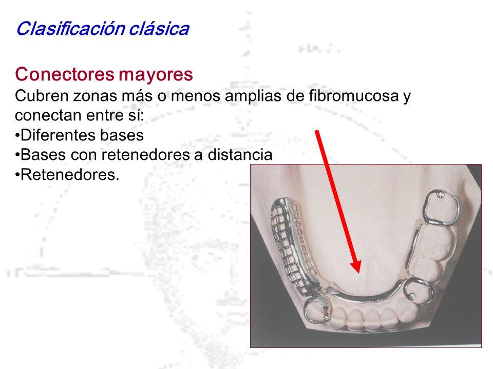 Clasificación clásica Conectores mayores Cubren zonas más o menos amplias de fibromucosa y conectan entre sí: Diferentes bases Bases con retenedores a