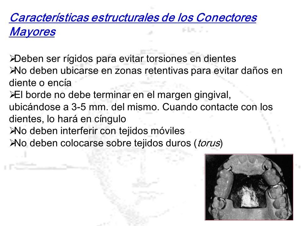 Características estructurales de los Conectores Mayores Deben ser rígidos para evitar torsiones en dientes No deben ubicarse en zonas retentivas para