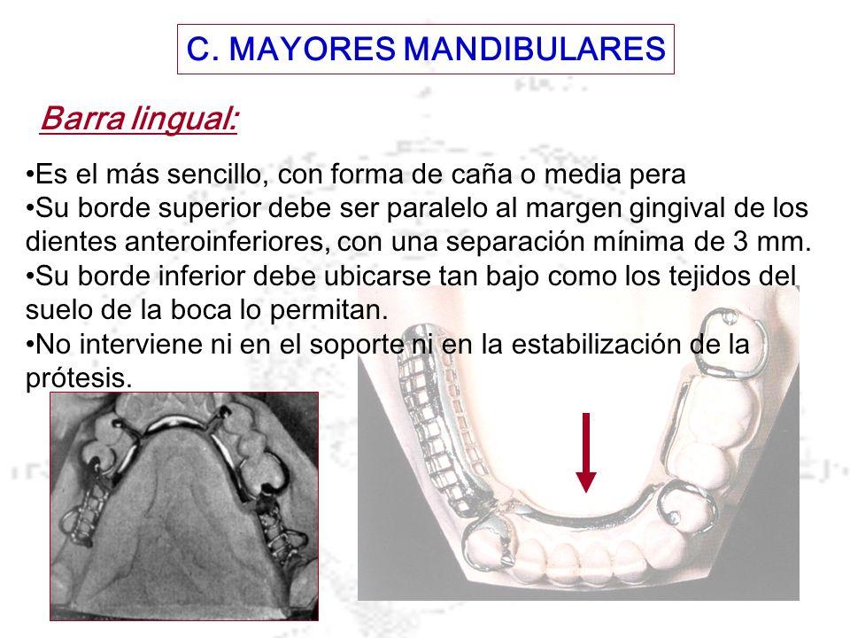 C. MAYORES MANDIBULARES Barra lingual: Es el más sencillo, con forma de caña o media pera Su borde superior debe ser paralelo al margen gingival de lo