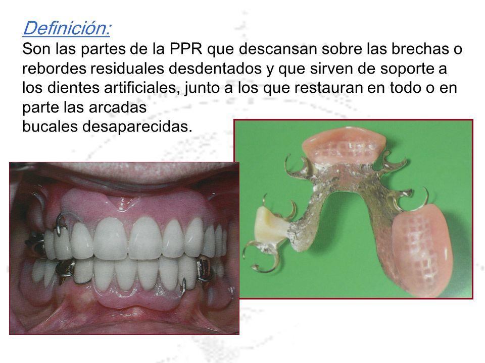 Definición: Son las partes de la PPR que descansan sobre las brechas o rebordes residuales desdentados y que sirven de soporte a los dientes artificia