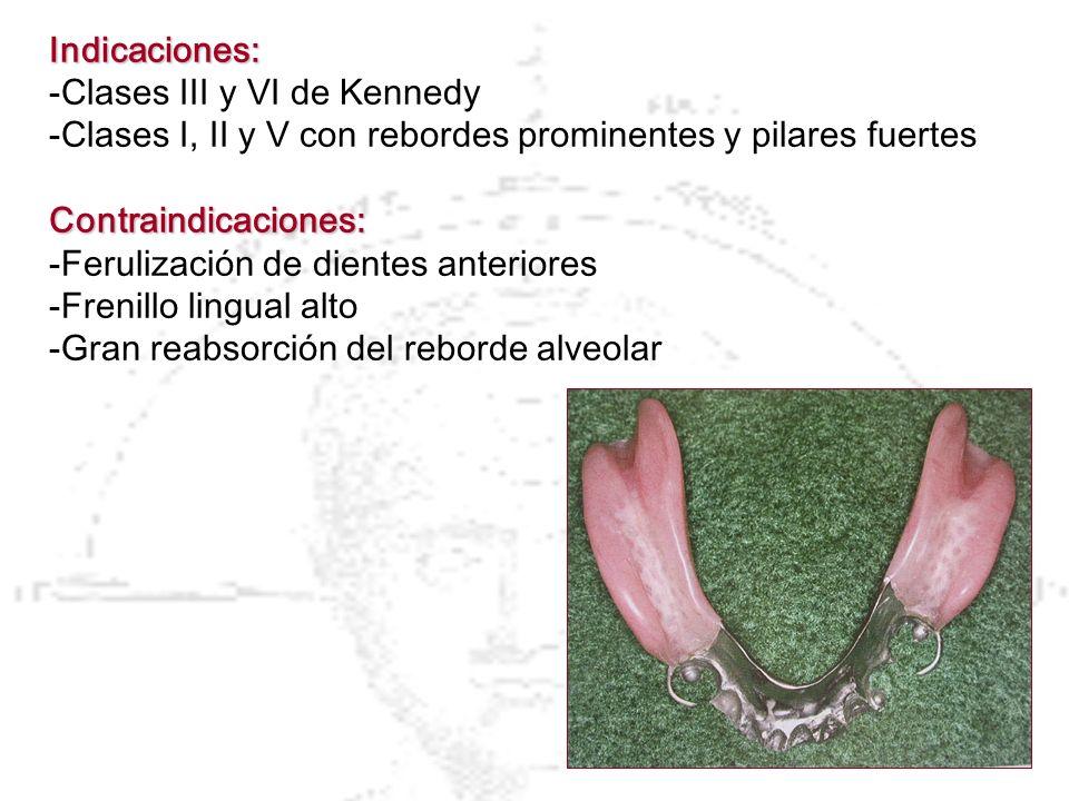 Indicaciones: -Clases III y VI de Kennedy -Clases I, II y V con rebordes prominentes y pilares fuertesContraindicaciones: -Ferulización de dientes ant
