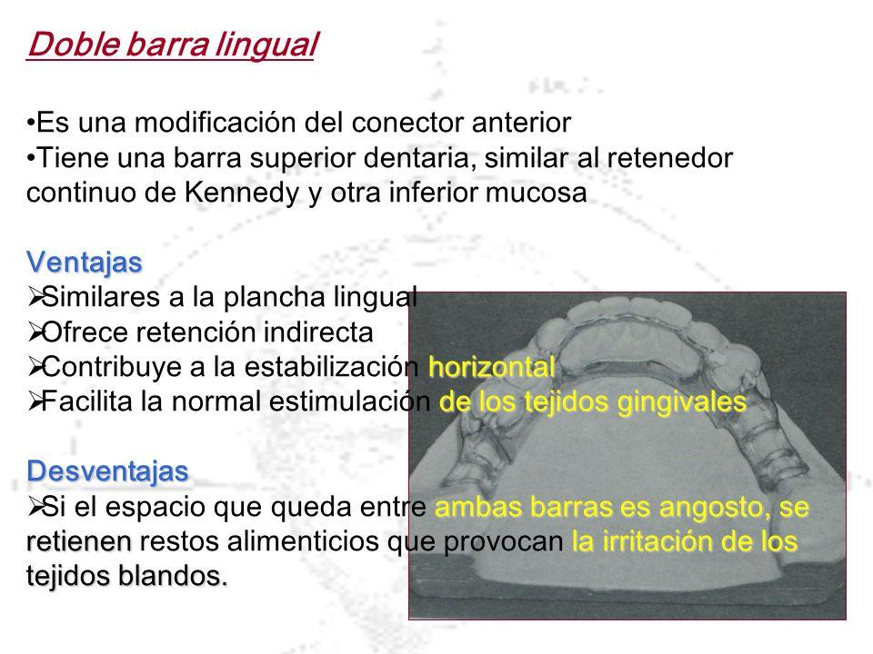 Doble barra lingual Es una modificación del conector anterior Tiene una barra superior dentaria, similar al retenedor continuo de Kennedy y otra infer
