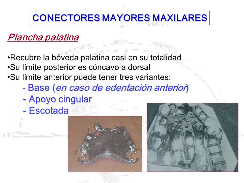 Plancha palatina Recubre la bóveda palatina casi en su totalidad Su límite posterior es cóncavo a dorsal Su límite anterior puede tener tres variantes