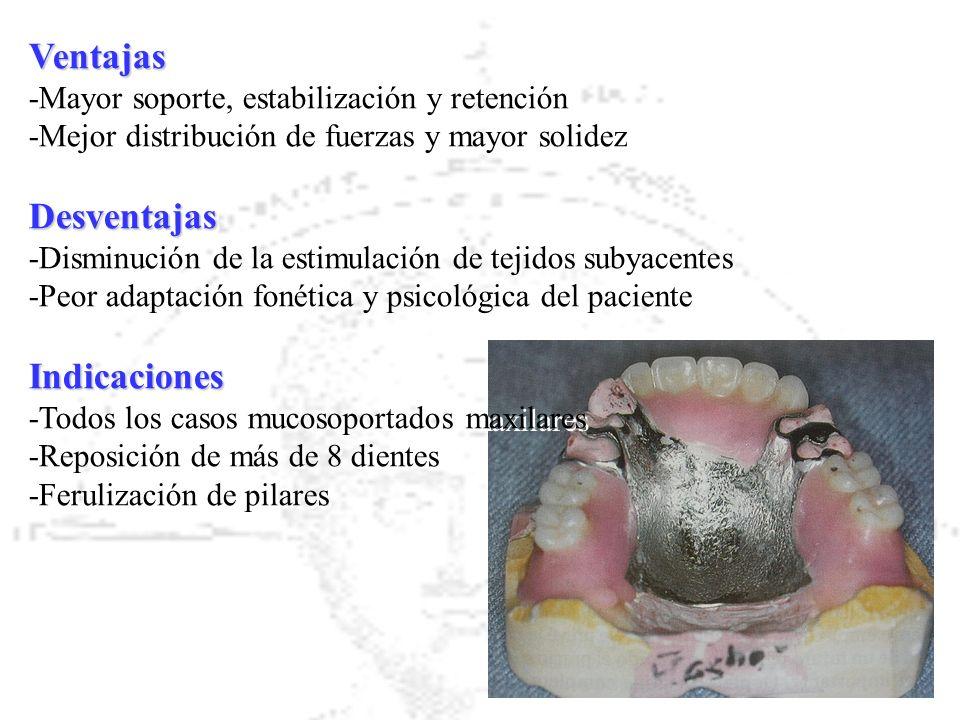 Ventajas -Mayor soporte, estabilización y retención -Mejor distribución de fuerzas y mayor solidezDesventajas -Disminución de la estimulación de tejid