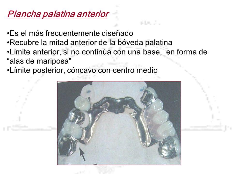 Plancha palatina anterior Es el más frecuentemente diseñado Recubre la mitad anterior de la bóveda palatina Límite anterior, si no continúa con una ba