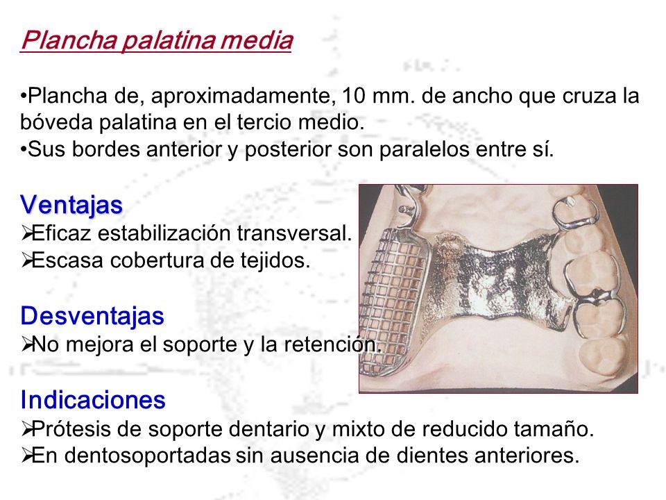 Plancha palatina media Plancha de, aproximadamente, 10 mm. de ancho que cruza la bóveda palatina en el tercio medio. Sus bordes anterior y posterior s
