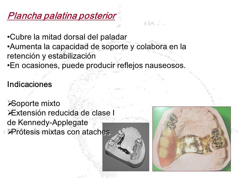 Plancha palatina posterior Cubre la mitad dorsal del paladar Aumenta la capacidad de soporte y colabora en la retención y estabilización En ocasiones,