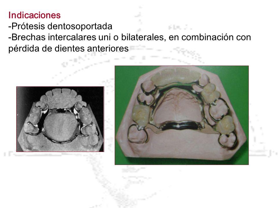 Indicaciones -Prótesis dentosoportada -Brechas intercalares uni o bilaterales, en combinación con pérdida de dientes anteriores