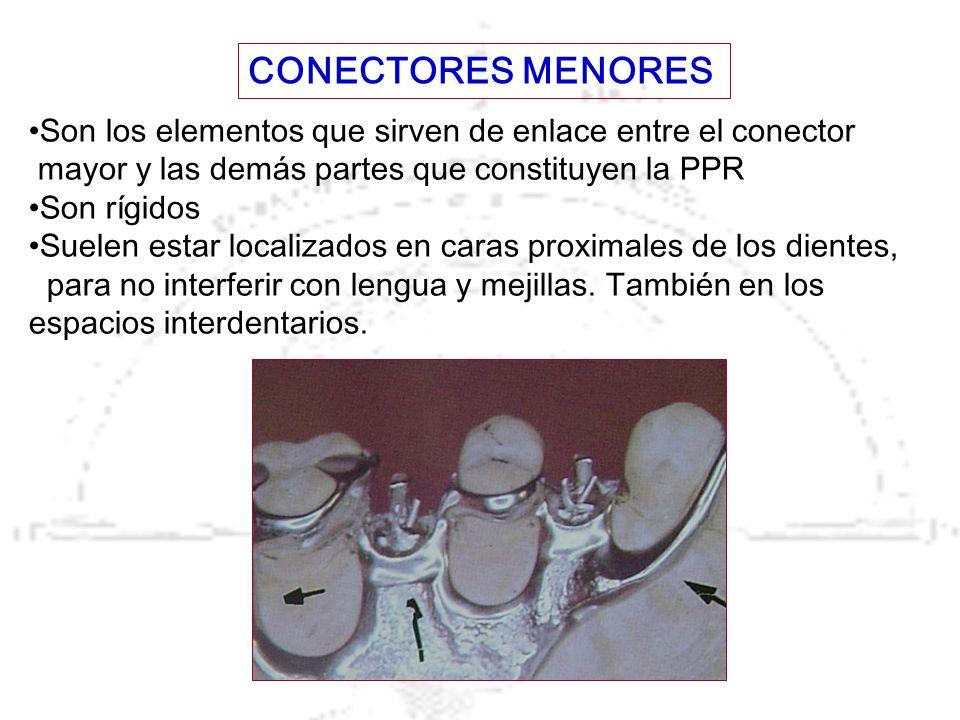 Son los elementos que sirven de enlace entre el conector mayor y las demás partes que constituyen la PPR Son rígidos Suelen estar localizados en caras