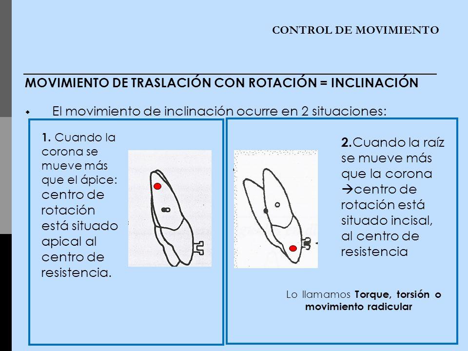 MOVIMIENTO DE TRASLACIÓN CON ROTACIÓN = INCLINACIÓN El movimiento de inclinación ocurre en 2 situaciones:. - CONTROL DE MOVIMIENTO 1. Cuando la corona