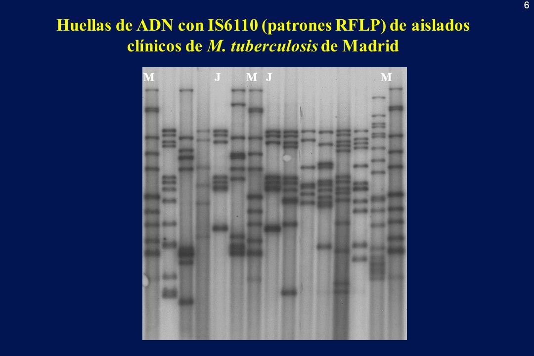 6 Huellas de ADN con IS6110 (patrones RFLP) de aislados clínicos de M. tuberculosis de Madrid MMMJJ