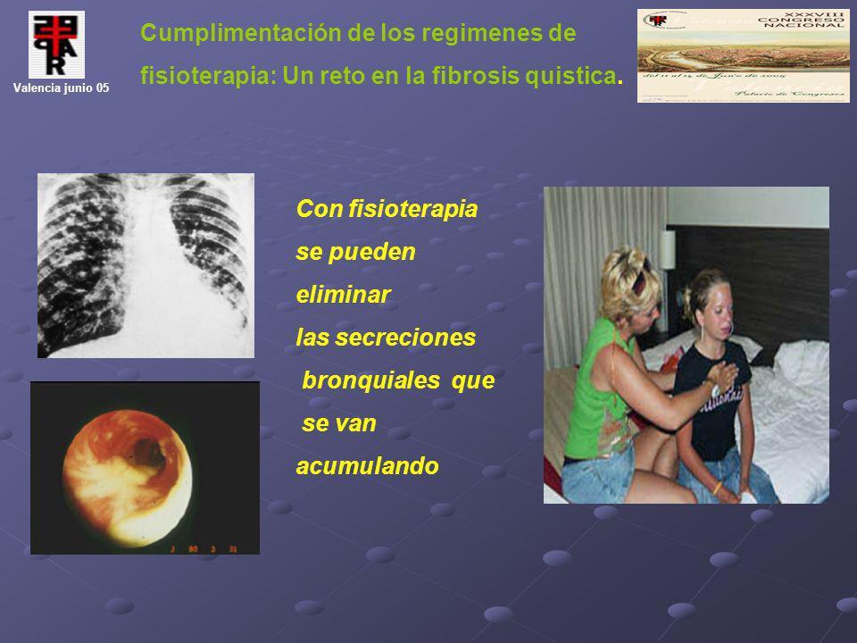 Cumplimentación de los regimenes de fisioterapia: Un reto en la fibrosis quistica. Valencia junio 05 Con fisioterapia se pueden eliminar las secrecion