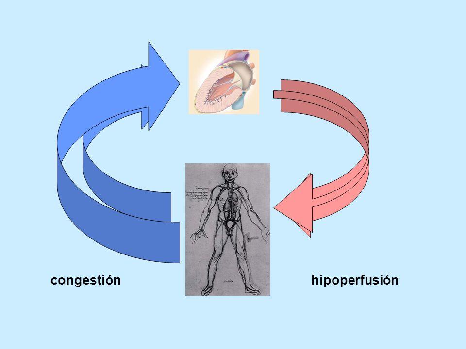 hipoperfusióncongestión