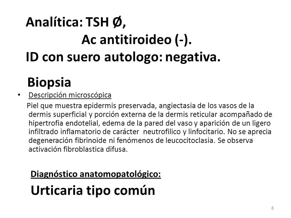 ANAKINRA Comercializado para Artritis reumatoide Uso compasivo para cuadros autoinflamatorios Sde Schnitzler : buenos resultados