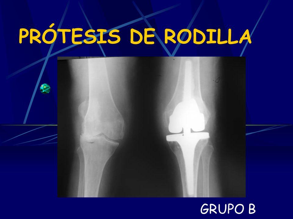 PRÓTESIS DE RODILLA GRUPO B