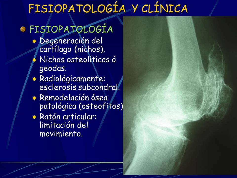 FISIOPATOLOGÍA Y CLÍNICA FISIOPATOLOGÍA Degeneración del cartílago (nichos).