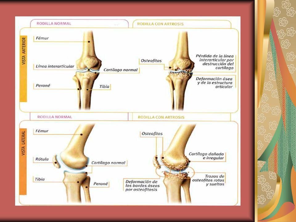 4.F.Complejo (conjunto) inflamatorio de una articulación.