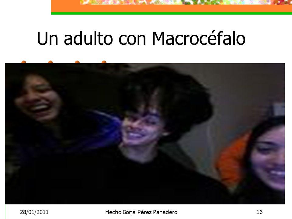 28/01/2011Hecho Borja Pérez Panadero16 Un adulto con Macrocéfalo