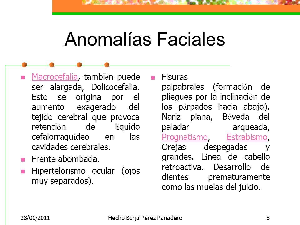 28/01/2011Hecho Borja Pérez Panadero8 Anomalías Faciales Macrocefalia, tambi é n puede ser alargada, Dolicocefalia.
