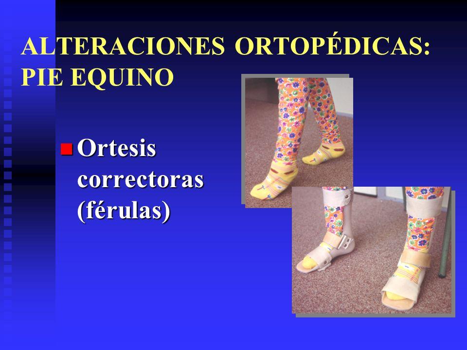 ALTERACIONES ORTOPÉDICAS: PIE EQUINO Ortesis correctoras (férulas) Ortesis correctoras (férulas)