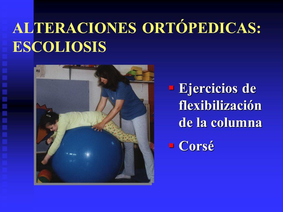 ALTERACIONES ORTÓPEDICAS: ESCOLIOSIS Ejercicios de flexibilización de la columna Corsé