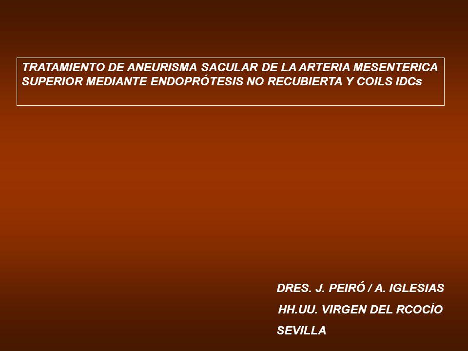 TRATAMIENTO DE ANEURISMA SACULAR DE LA ARTERIA MESENTERICA SUPERIOR MEDIANTE ENDOPRÓTESIS NO RECUBIERTA Y COILS IDCs DRES. J. PEIRÓ / A. IGLESIAS HH.U