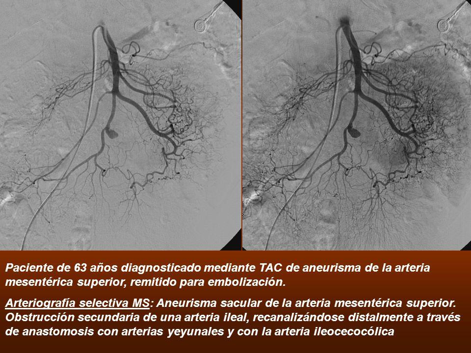 Paciente de 63 años diagnosticado mediante TAC de aneurisma de la arteria mesentérica superior, remitido para embolización. Arteriografía selectiva MS