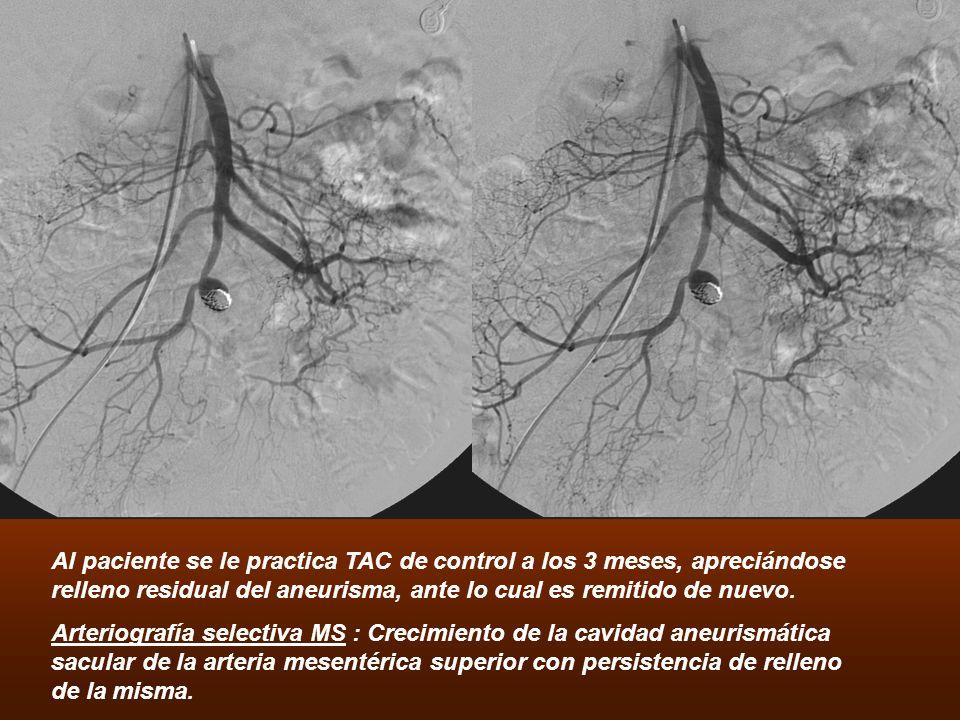 Al paciente se le practica TAC de control a los 3 meses, apreciándose relleno residual del aneurisma, ante lo cual es remitido de nuevo. Arteriografía