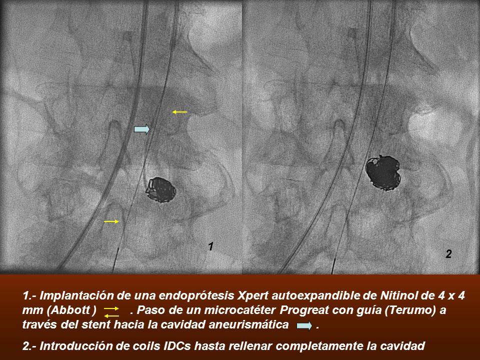 1.- Implantación de una endoprótesis Xpert autoexpandible de Nitinol de 4 x 4 mm (Abbott ). Paso de un microcatéter Progreat con guía (Terumo) a travé