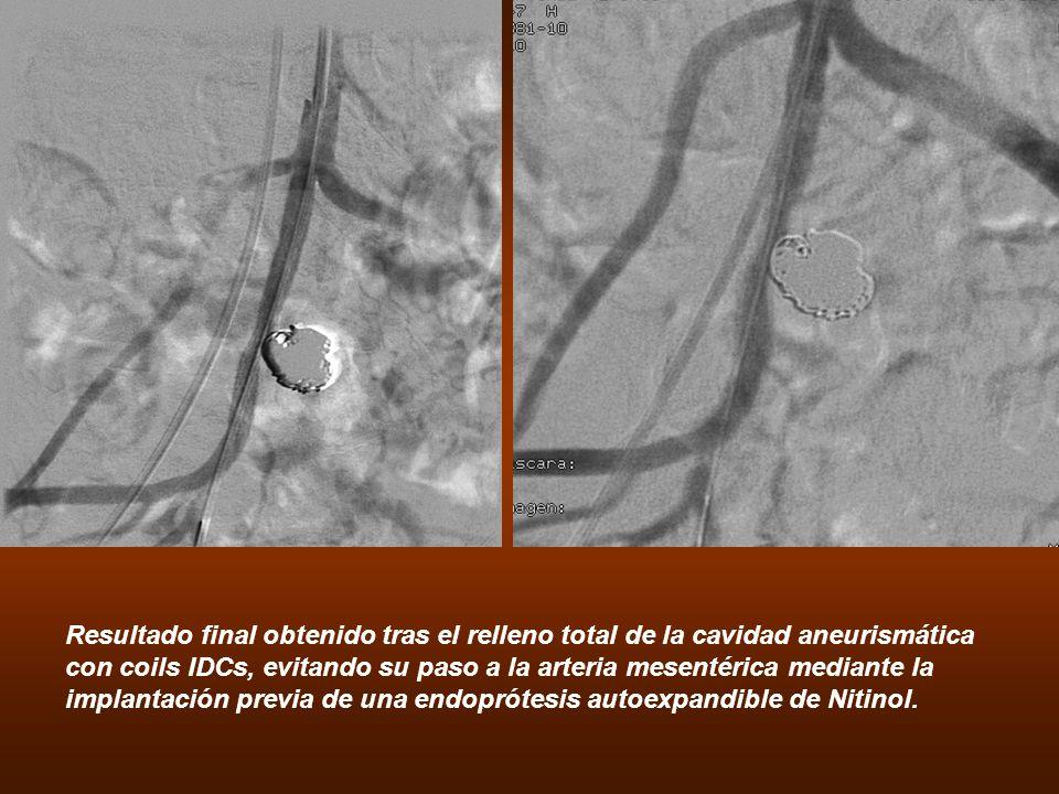 Resultado final obtenido tras el relleno total de la cavidad aneurismática con coils IDCs, evitando su paso a la arteria mesentérica mediante la impla