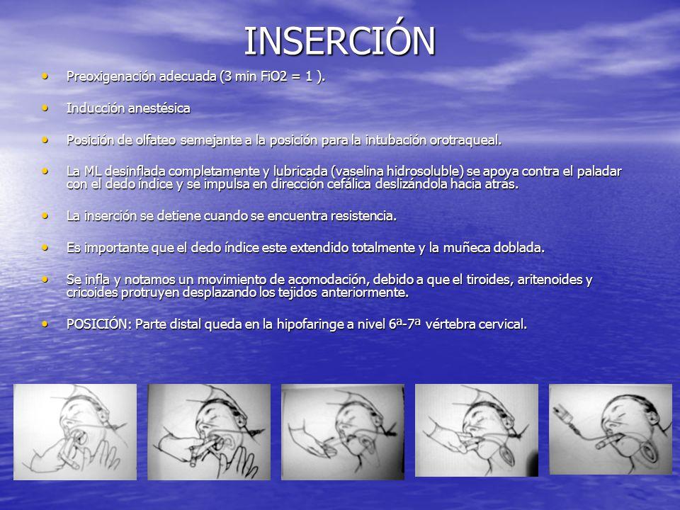 INSERCIÓN Preoxigenación adecuada (3 min FiO2 = 1 ). Preoxigenación adecuada (3 min FiO2 = 1 ). Inducción anestésica Inducción anestésica Posición de