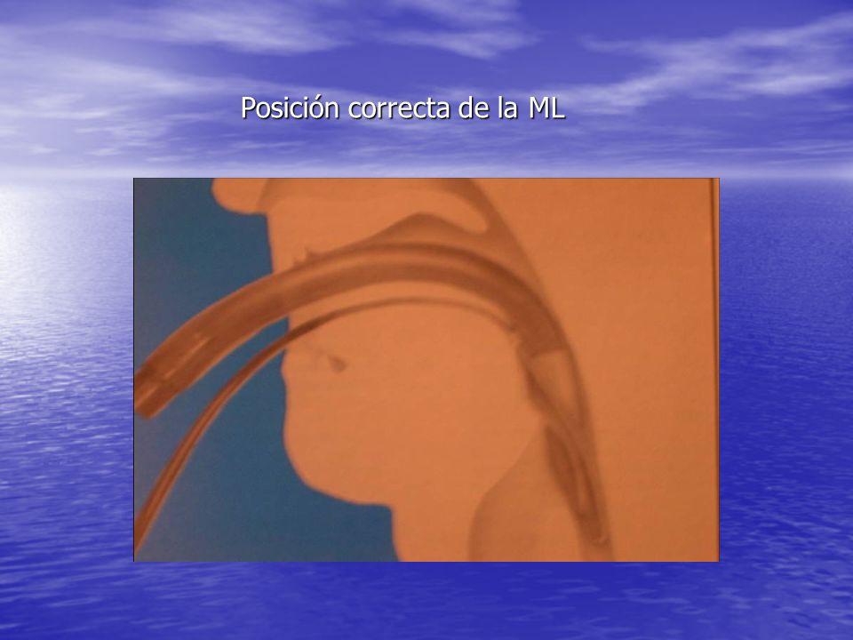 Posición correcta de la ML