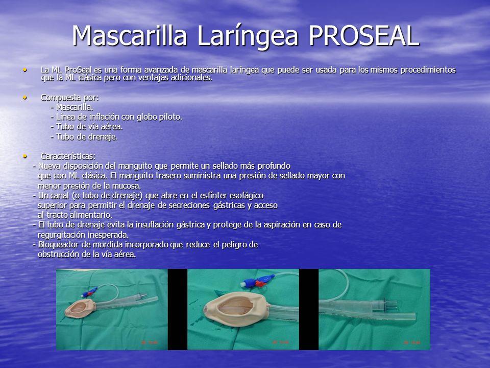 Mascarilla Laríngea PROSEAL La ML ProSeal es una forma avanzada de mascarilla laríngea que puede ser usada para los mismos procedimientos que la ML cl