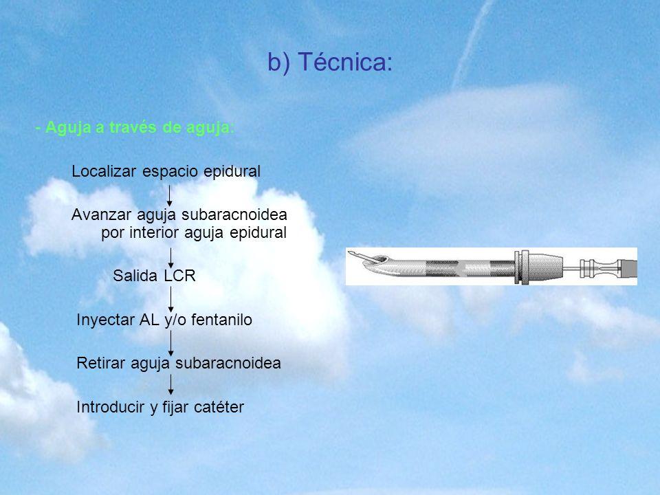 b) Técnica: - Aguja a través de aguja: Localizar espacio epidural Avanzar aguja subaracnoidea por interior aguja epidural Salida LCR Inyectar AL y/o f
