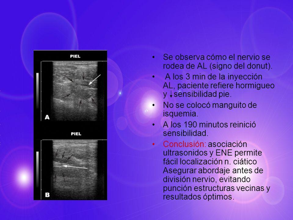 Se observa cómo el nervio se rodea de AL (signo del donut). A los 3 min de la inyección AL, paciente refiere hormigueo y sensibilidad pie. No se coloc