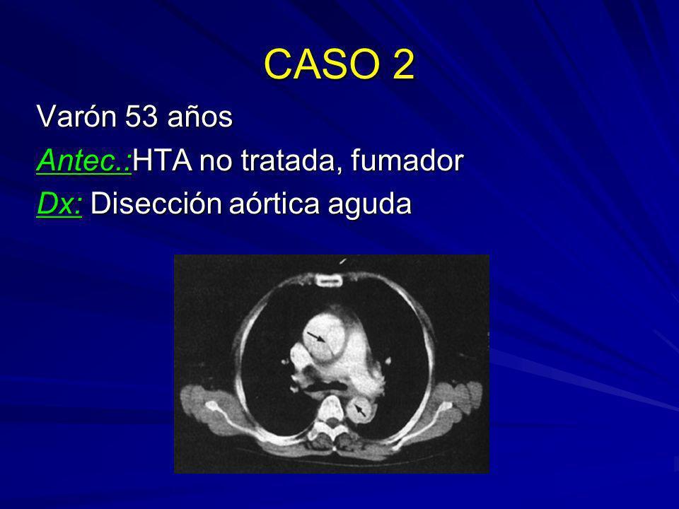 CASO 2 Varón 53 años Antec.:HTA no tratada, fumador Dx: Disección aórtica aguda