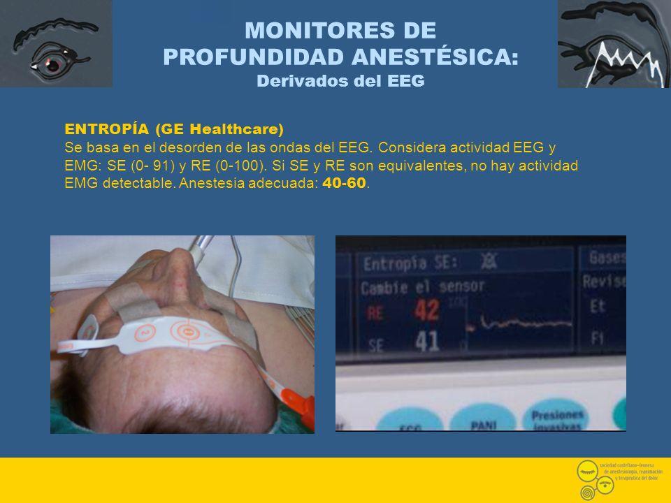 ENTROPÍA (GE Healthcare) Se basa en el desorden de las ondas del EEG. Considera actividad EEG y EMG: SE (0- 91) y RE (0-100). Si SE y RE son equivalen