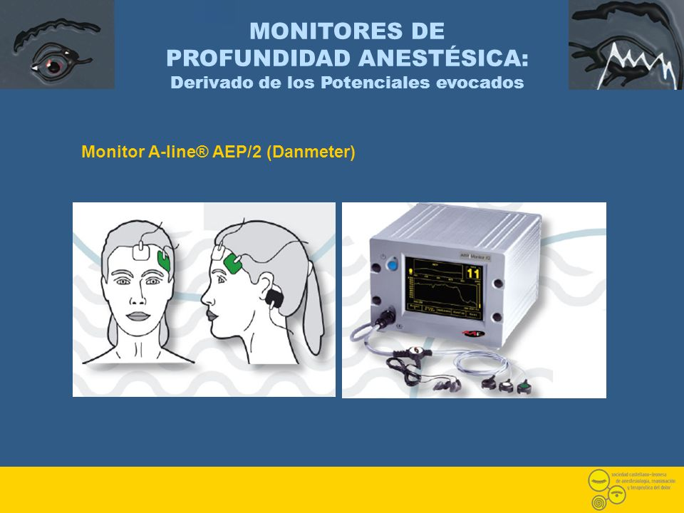 Monitor A-line® AEP/2 (Danmeter) MONITORES DE PROFUNDIDAD ANESTÉSICA: Derivado de los Potenciales evocados