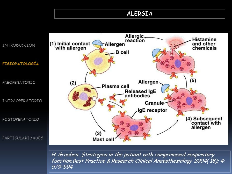 ALERGIA G Liccardi et al.Strategies for the Prevention of Asthmatic,Anaphylactic and Anaphylactoid Reactions During the Administration of Anesthetics and/or Contrast Media.J Investig Allergol Clin Immunol 2008; Vol.