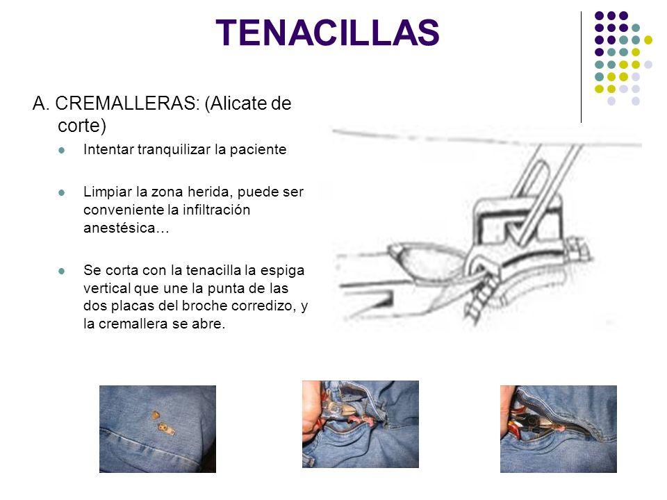 TENACILLAS A. CREMALLERAS: (Alicate de corte) Intentar tranquilizar la paciente Limpiar la zona herida, puede ser conveniente la infiltración anestési